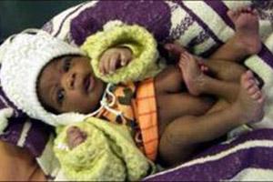 أمراة جزائرية تضع مولود بـ 4 أرجل